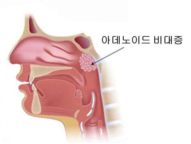 아데노이드 비대증의 발병위치 사진